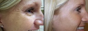 Treatment to Crow's feet with botox