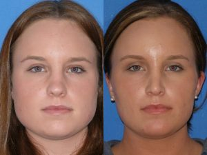 Reduction of square jaw with botox