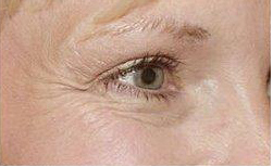 Crows feet before treatment with Botox