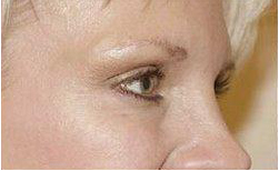 Crows feet after treatment with Botox