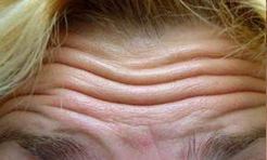 Forehead lines before treatment