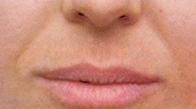 asolabial lines before treatment with Dermal filler