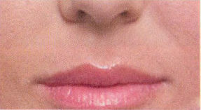 Nasolabial lines after treatment with Dermal filler