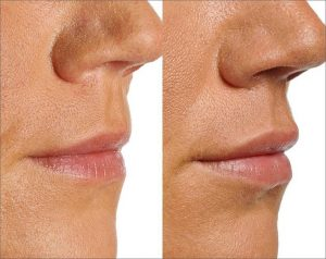 Filler to lips